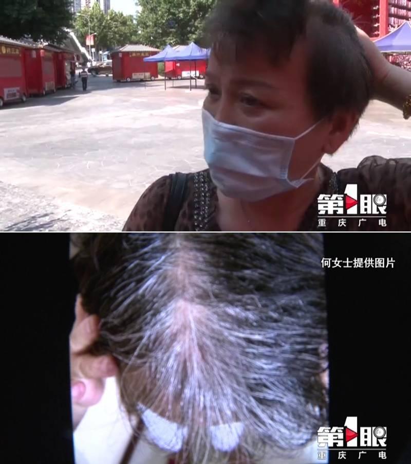 中國福建一名何姓女子花了約4萬元人民幣購買「白髮轉黑」療程,卻發現自己受騙。(翻攝中媒新浪)