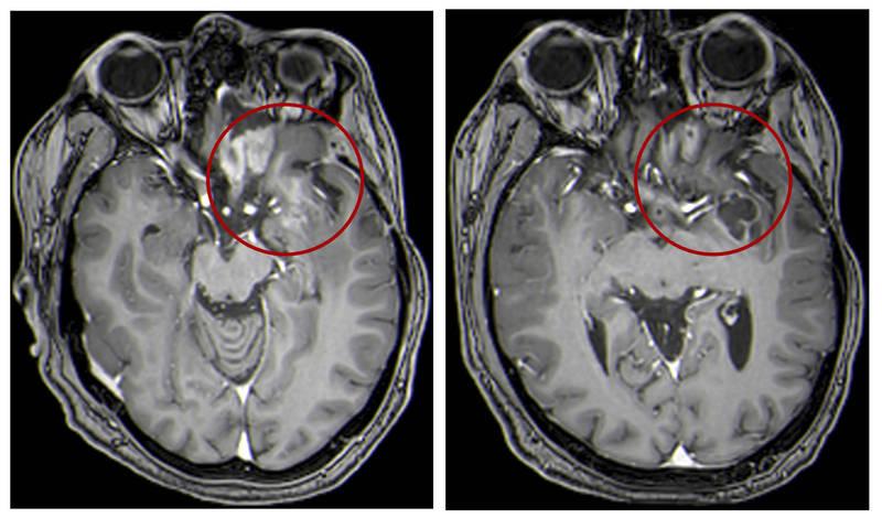 科學家最新發現一種新療法,可以讓過去被診斷為癌症末期的惡性腫瘤縮小,甚至完全消失。此為腦部腫瘤示意圖,與新聞無關。(美聯社)