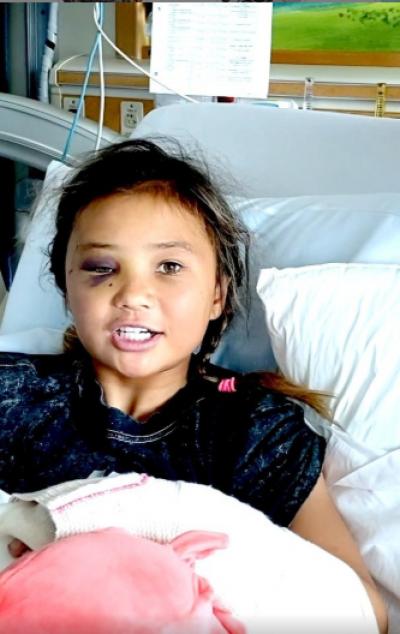 奧運》最年輕職業滑板選手斷臂昏迷 11歲女孩鬼門關前走一遭