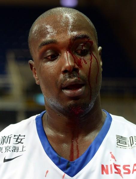 德瑞克眼角被打到直流血。(記者林正堃攝)