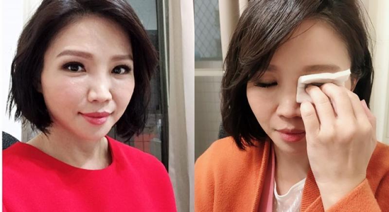 【柳燕】常戴假睫毛、雙眼皮貼,眼皮會越來越鬆?