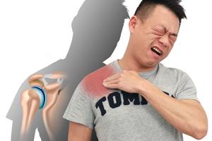 大多肩痛源自它!常被忽略而復元無期