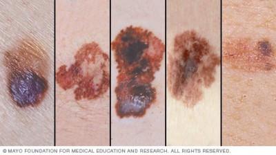 醫療新知與日常保健》皮膚癌要當心,五大基本判斷守則幫助您提高警覺!