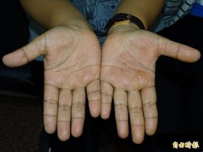 醫療新知與日常保健》爆癢的汗皰疹,蔡佳芬醫師教你如何找病因!