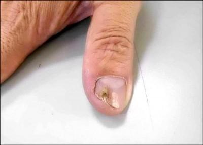 醫療新知與日常保健》不再讓灰指甲影響你的指尖風情