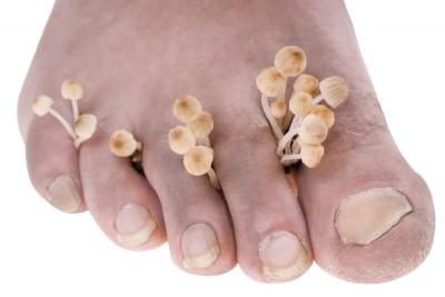醫療新知與日常保健》老是甩不掉的香港腳?皮膚科醫師教你如何徹底完勝