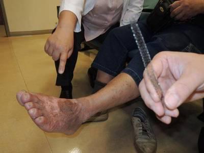 健康醫療網》來路不明藥粉勿聽信,下肢傷口好不了拖延病情恐截肢